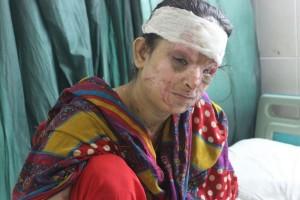 Miles de mujeres jóvenes que sobrevivieron a los ataques con ácido padecen consecuencias físicas, psicológicas y sociales. Crédito: Zofeen Ebrahim / IPS